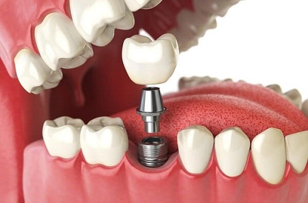 Kết quả hình ảnh cho phục hình răng sứ trên implant