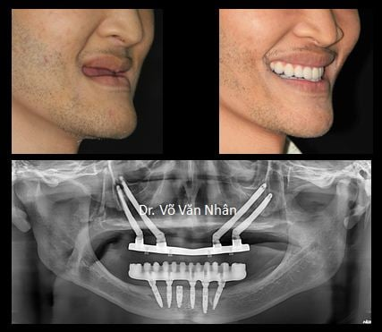 Le patient's confident smile compared to the original and image on the film Panorama.