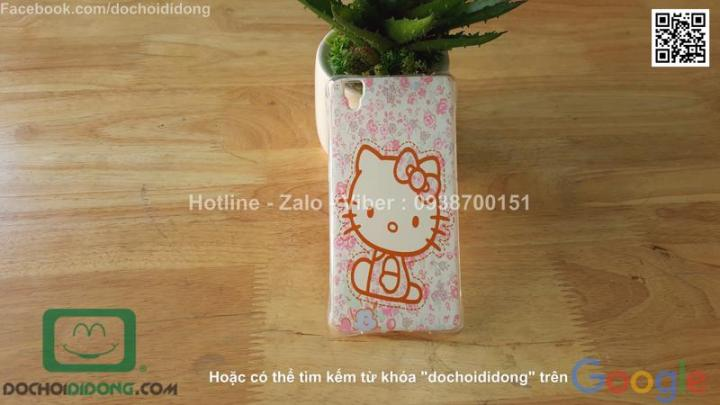 op-lung-oppo-r7s-deo-hoat-hinh