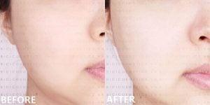 Peel da/ thay da sinh học thì đây là một phương pháp hoàn toàn lành tính và cực kỳ hiệu quả.- Bici Cosmetics