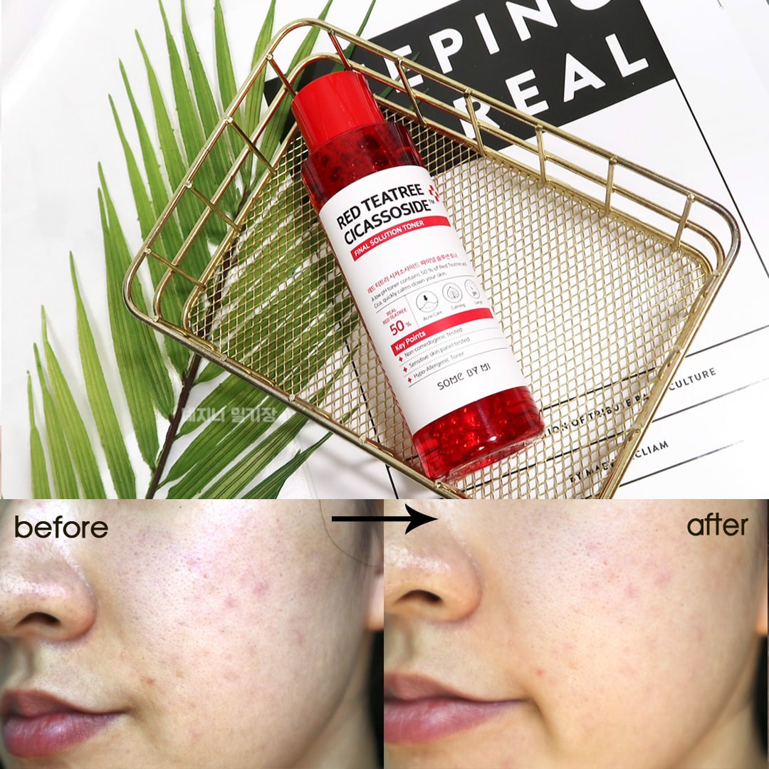 Nước Hoa Hồng Giảm Mụn Some By Mi Red Teatree Cicassoside Final Solution Toner