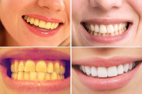Sản phẩm giúp làm trắng răng cấp tốc
