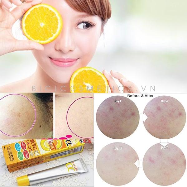 Sản phẩm ngừa mụn và làm da sáng hiệu quả 1