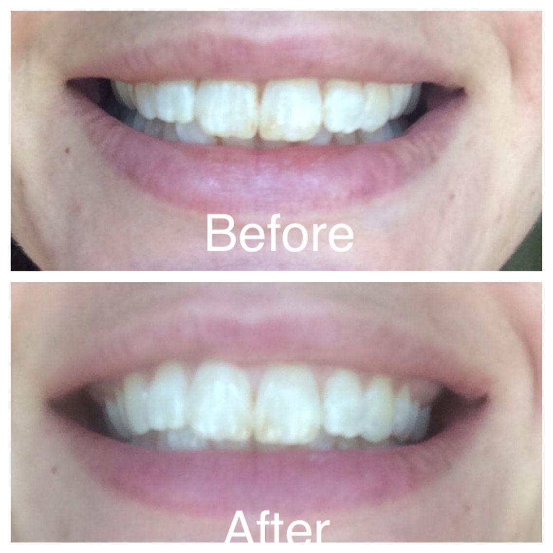 Kem đánh răng Crest® 3D 1- Bici Cosmetics