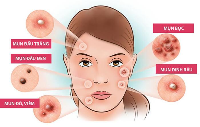 Nếu không điều trị sớm và dứt điểm thì sẽ mang đến những hệ lụy nguy hiểm về sau cho làn da- Bici Cosmetics