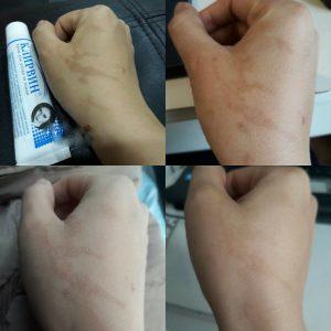 Công dụng kem trị sẹo nga Klirvin 1