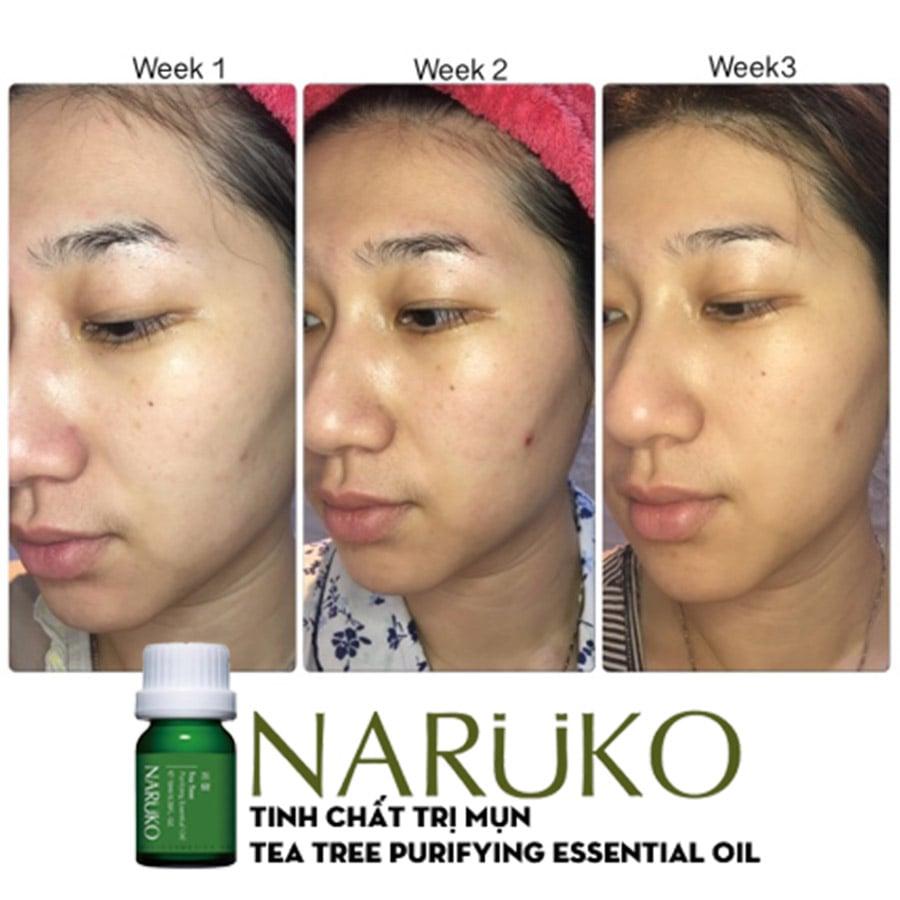 Tinh Dầu Trị Mụn NARUKO Tea Tree Purifying Essential Oil - bici cosmetics