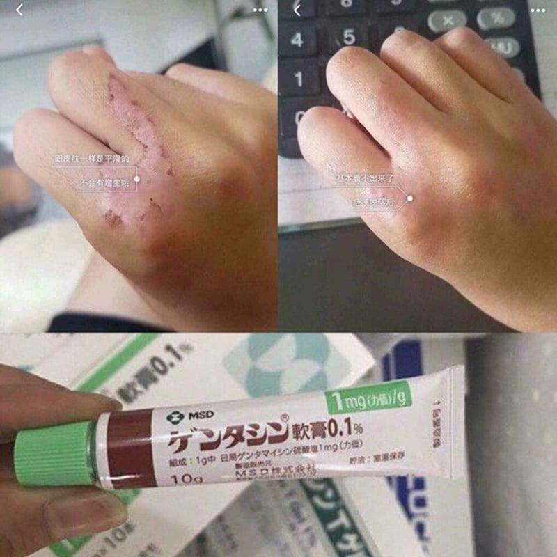 kem trị sẹo có tác dụng diệt khuẩn qua ức chế quá trình sinh tổng hợp protein của vi khuẩn- Bici Cosmetics
