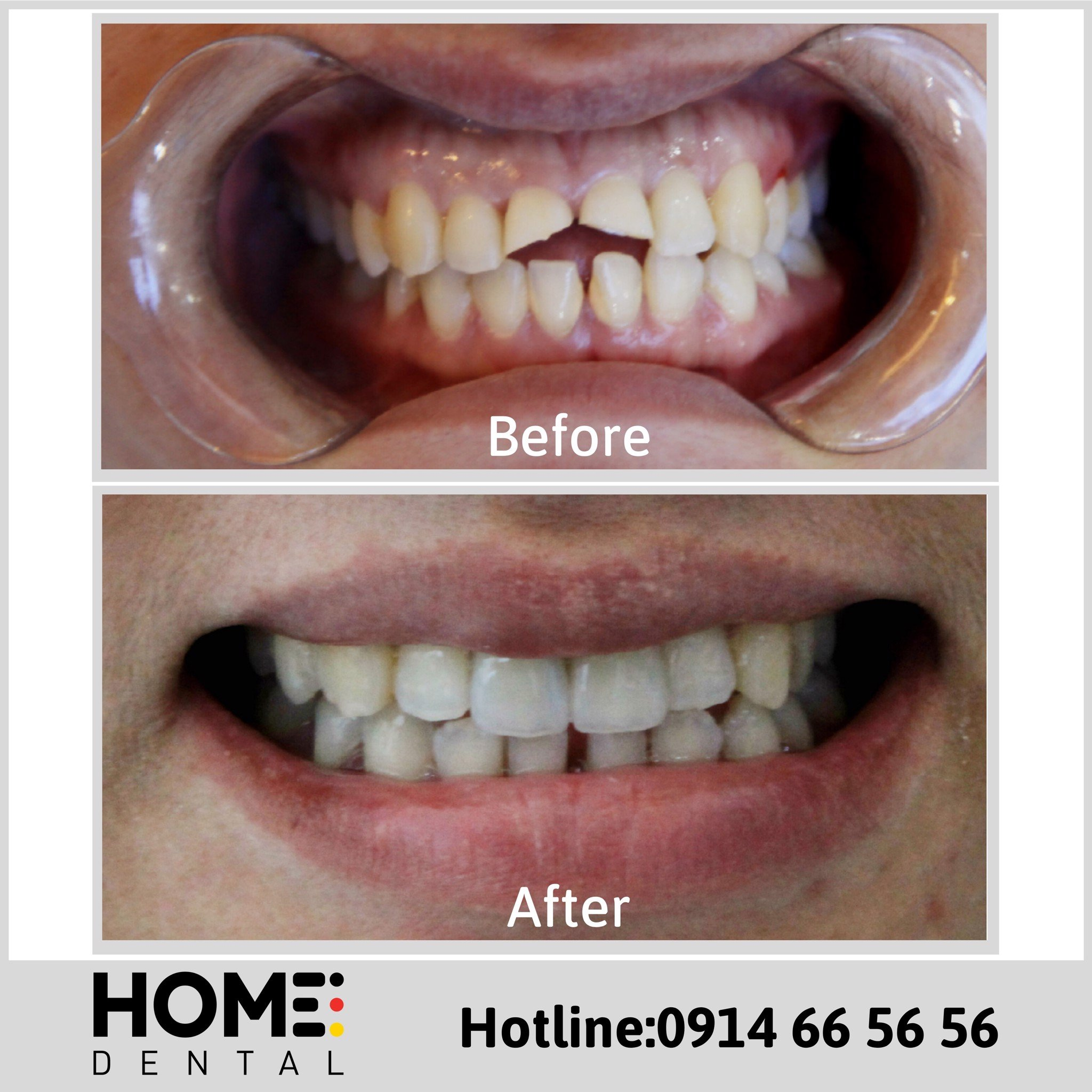 PORCELAIN CROWNS & LAMINATE VENEERS 3