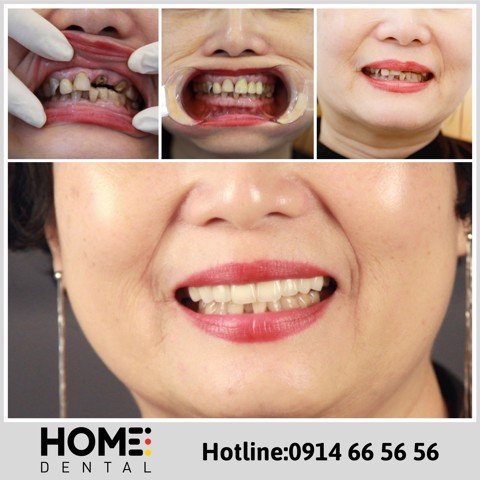 PORCELAIN CROWNS & LAMINATE VENEERS 1