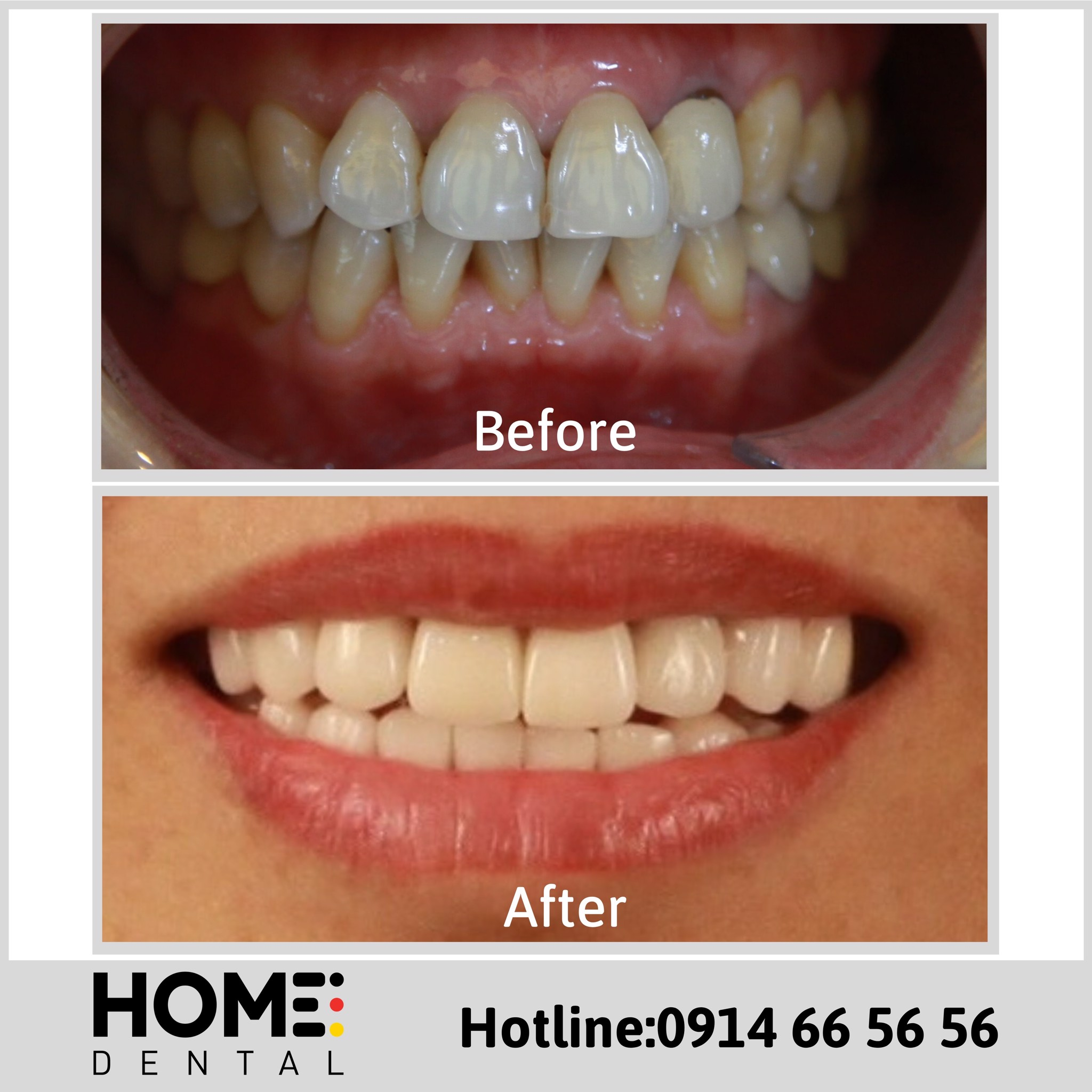 PORCELAIN CROWNS & LAMINATE VENEERS 2