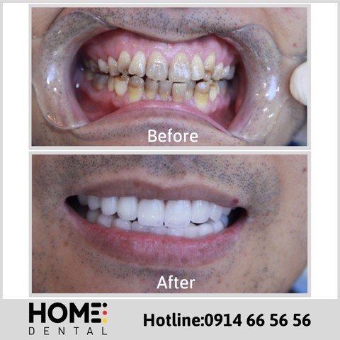 PORCELAIN CROWNS & LAMINATE VENEERS OF MR TAI