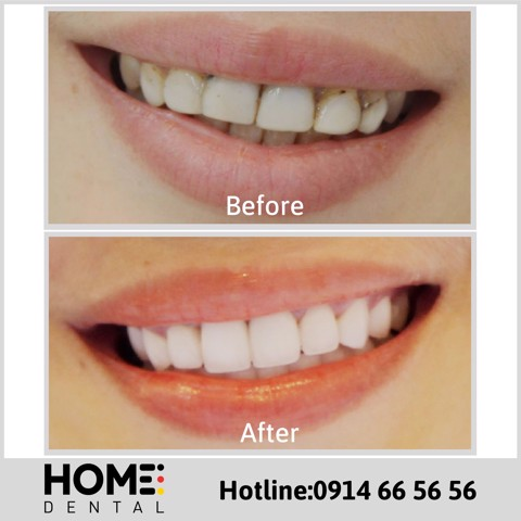 PORCELAIN CROWNS & LAMINATE VENEERS OF MRS ANH THU