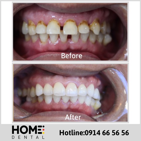 PORCELAIN CROWNS & LAMINATE VENEERS OF MR CUONG