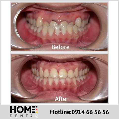ORTHODONTIC TREATMENT 11