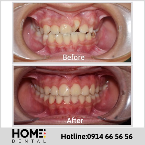 ORTHODONTIC TREATMENT 10