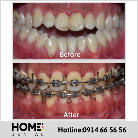 ORTHODONTIC TREATMENT 3