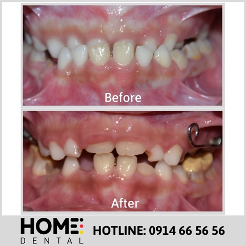 ORTHODONTIC TREATMENT 5