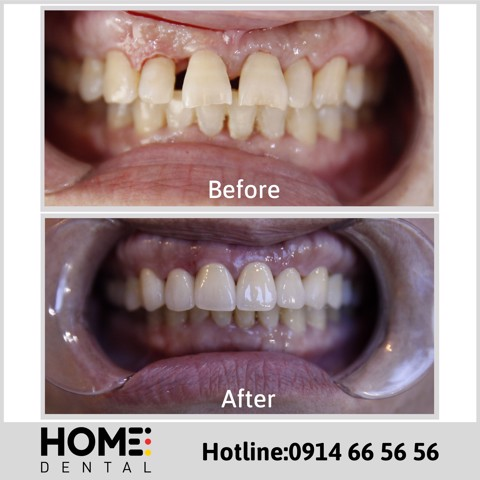 PORCELAIN CROWNS & LAMINATE VENEERS OF MRS DINH THI HONG HANH