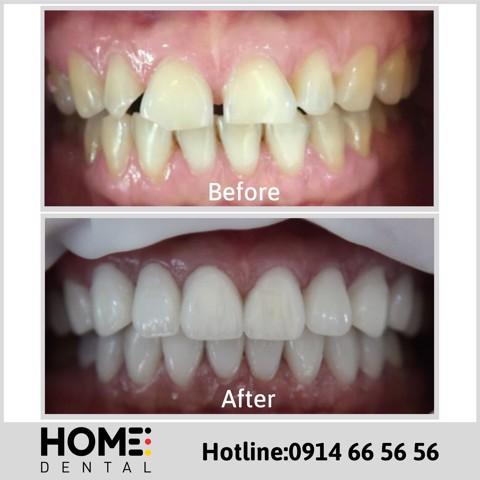 PORCELAIN CROWNS & LAMINATE VENEERS OF MRS DIEU HANG