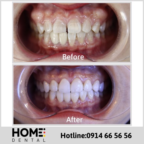 PORCELAIN CROWNS & LAMINATE VENEERS OF MISS HAO