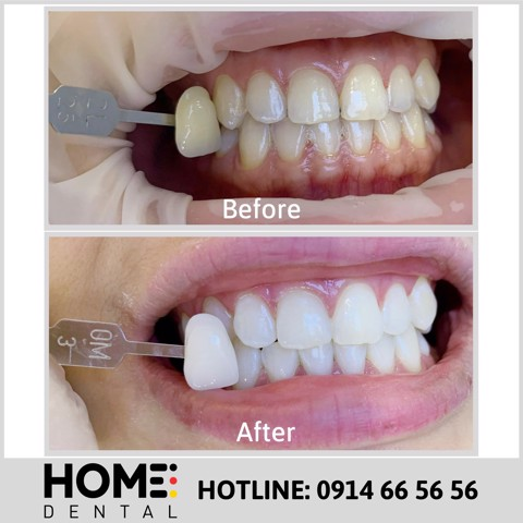 TEETH WHITENING 4