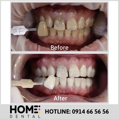 TEETH WHITENING 7