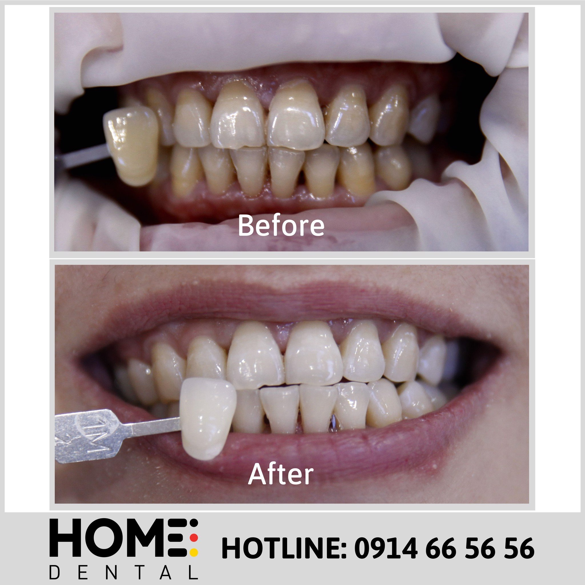 TEETH WHITENING 9