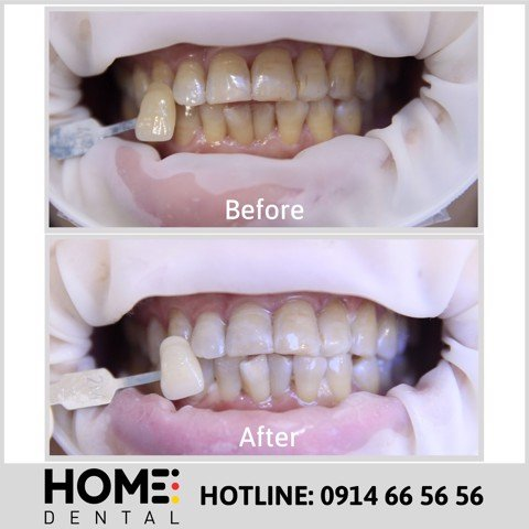 TEETH WHITENING 11