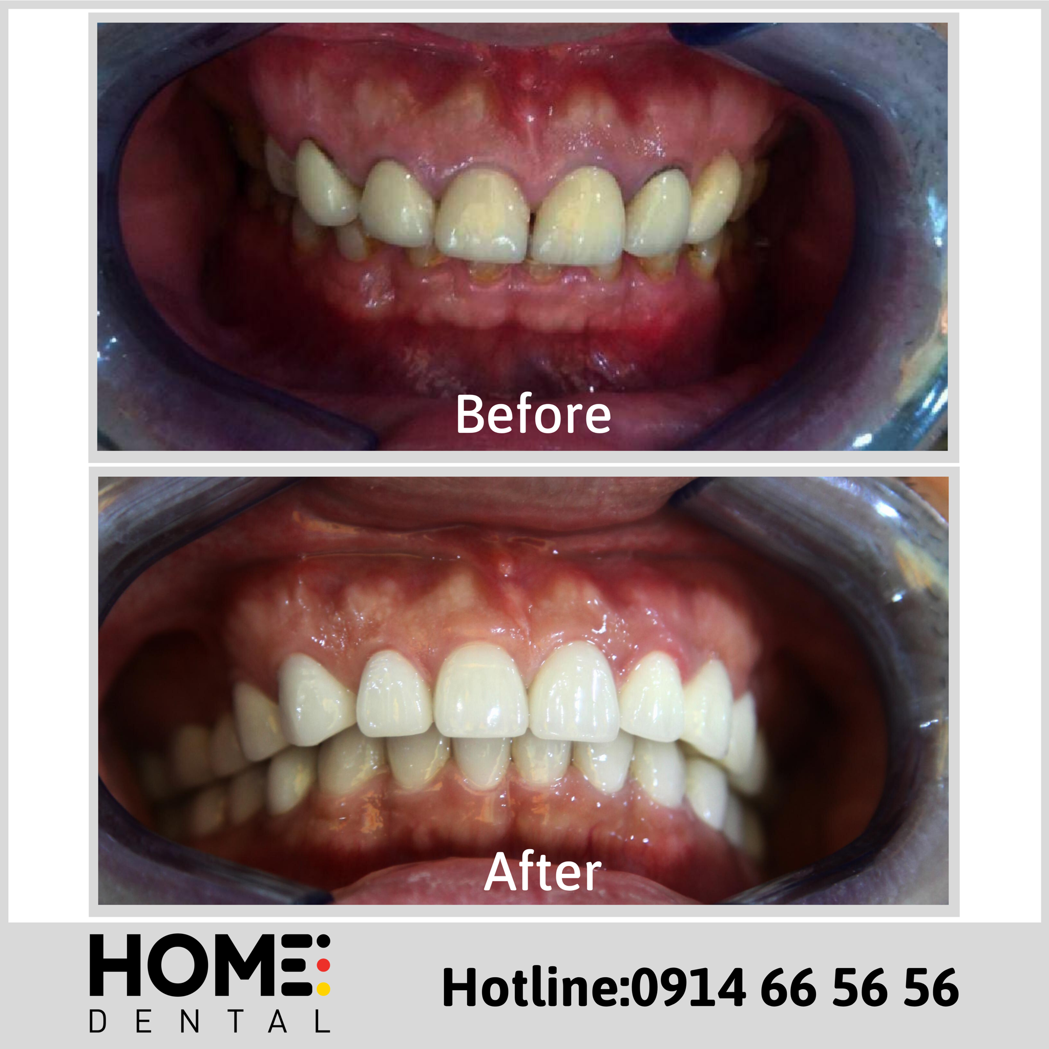 PORCELAIN CROWNS & LAMINATE VENEERS OF MR VUONG TUAN ANH